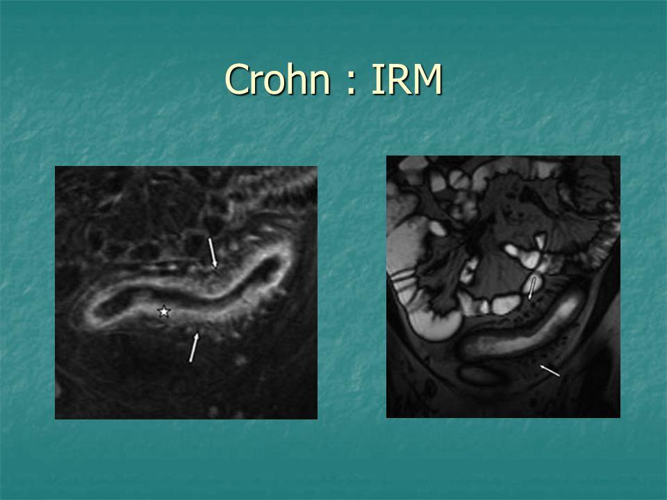 Crohn : IRM