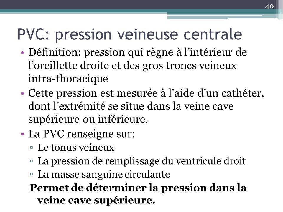 PVC: pression veineuse centrale