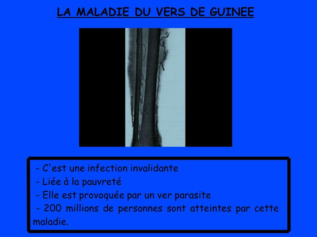 LA MALADIE DU VERS DE GUINEE