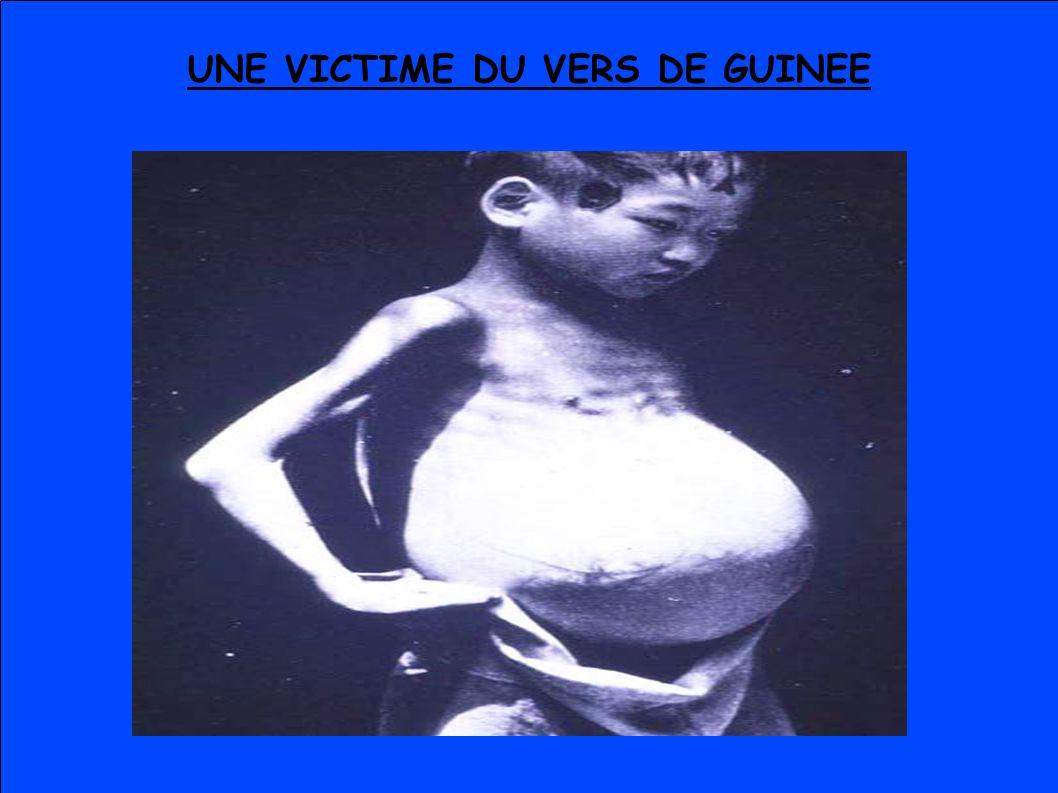 UNE VICTIME DU VERS DE GUINEE
