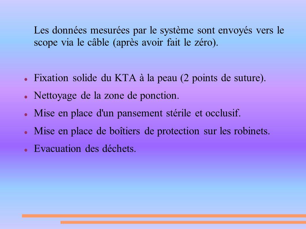 Les données mesurées par le système sont envoyés vers le scope via le câble (après avoir fait le zéro).