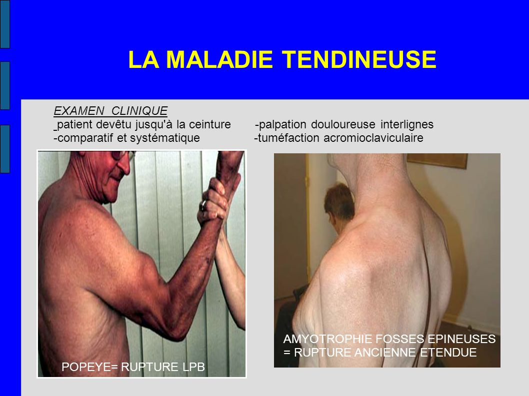 LA MALADIE TENDINEUSE EXAMEN CLINIQUE