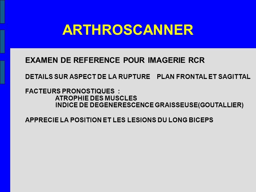 ARTHROSCANNER EXAMEN DE REFERENCE POUR IMAGERIE RCR