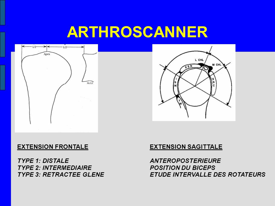 ARTHROSCANNER EXTENSION FRONTALE TYPE 1: DISTALE TYPE 2: INTERMEDIAIRE