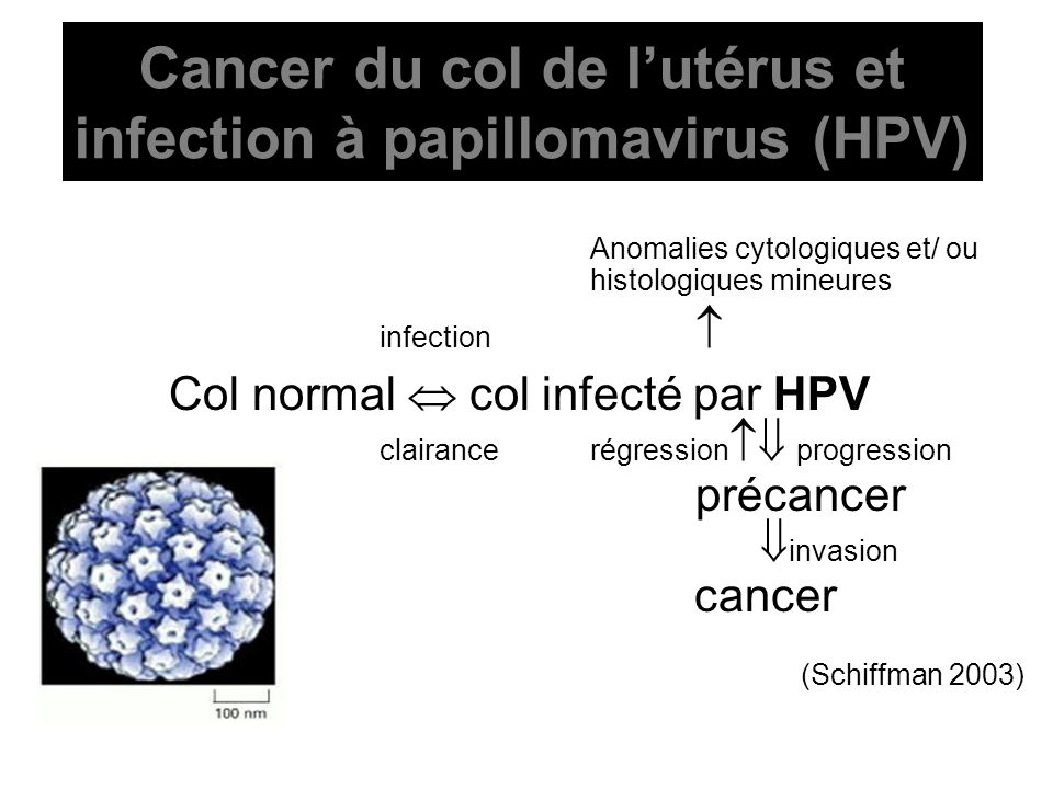 Cancer du col de l'utérus et infection à papillomavirus (HPV)