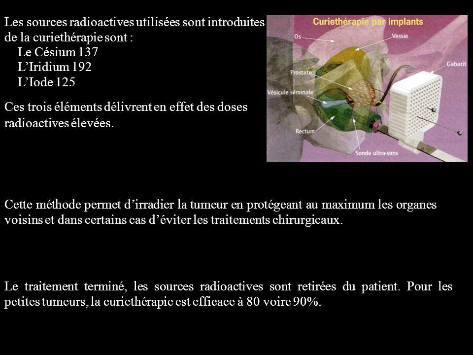 Les sources radioactives utilisées sont introduites lors de la curiethérapie sont : Le Césium 137 L'Iridium 192 L'Iode 125