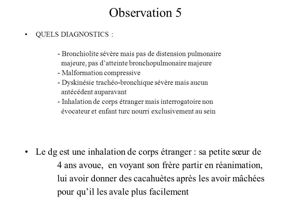 Observation 5 QUELS DIAGNOSTICS : - Bronchiolite sévère mais pas de distension pulmonaire. majeure, pas d'atteinte bronchopulmonaire majeure.