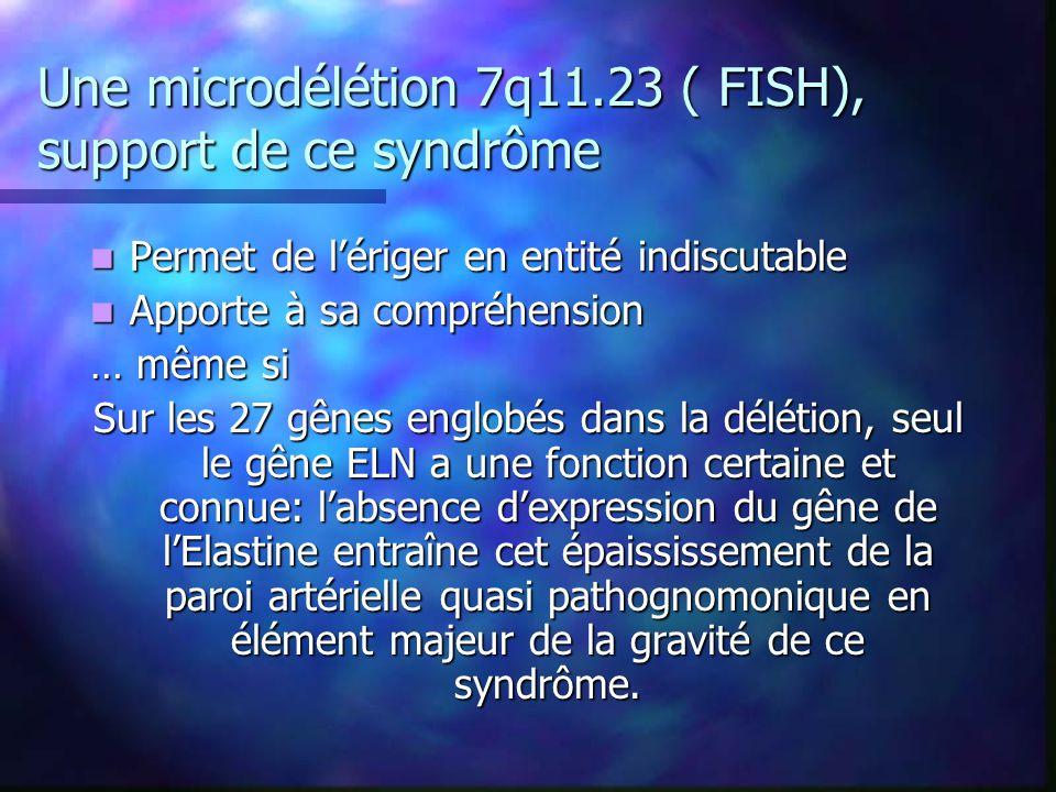 Une microdélétion 7q11.23 ( FISH), support de ce syndrôme