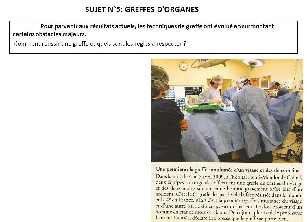 SUJET N°5: GREFFES D'ORGANES