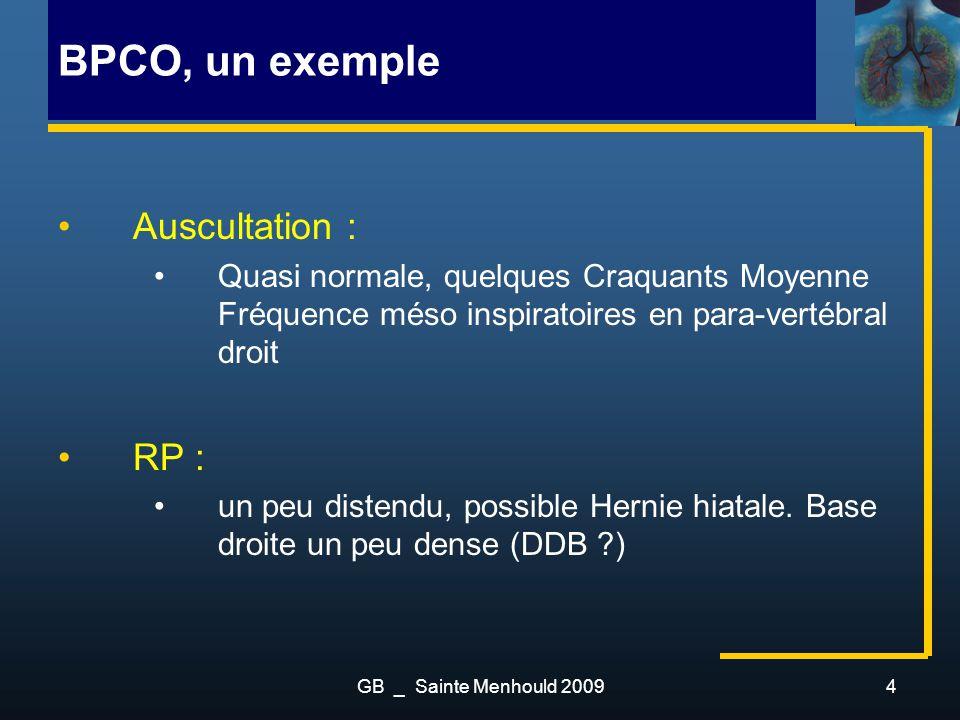 BPCO, un exemple Auscultation : RP :