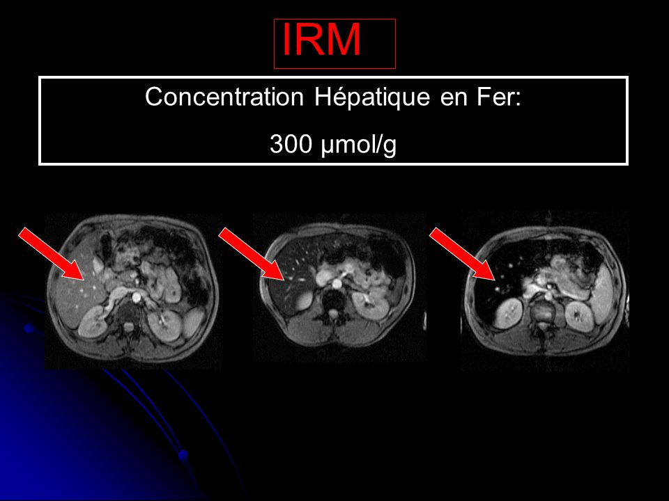 Concentration Hépatique en Fer: