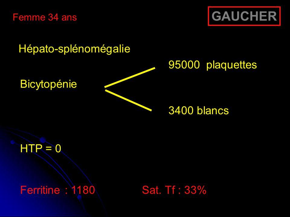 GAUCHER Hépato-splénomégalie Bicytopénie 95000 plaquettes 3400 blancs
