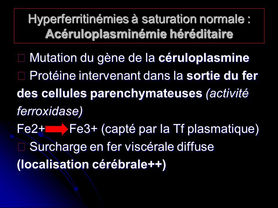 Hyperferritinémies à saturation normale : Acéruloplasminémie héréditaire