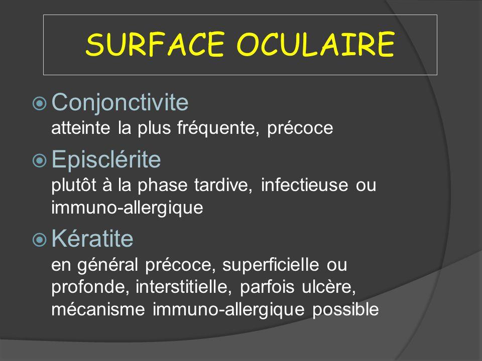 SURFACE OCULAIRE Conjonctivite atteinte la plus fréquente, précoce