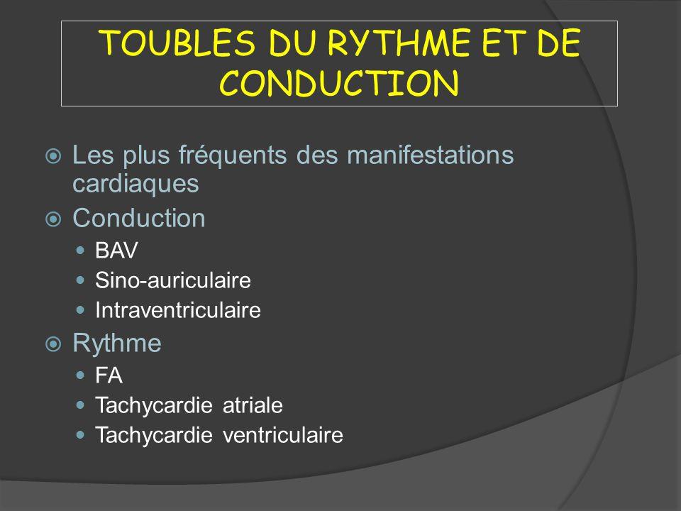 TOUBLES DU RYTHME ET DE CONDUCTION