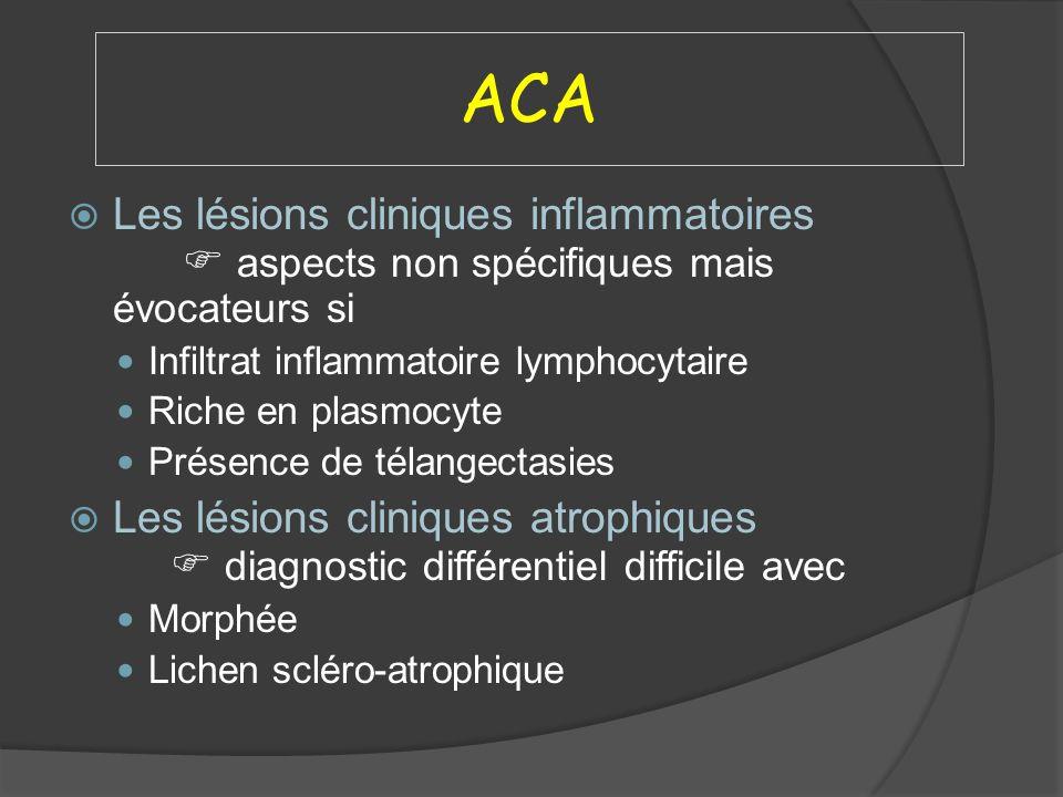 ACA Les lésions cliniques inflammatoires  aspects non spécifiques mais évocateurs si. Infiltrat inflammatoire lymphocytaire.