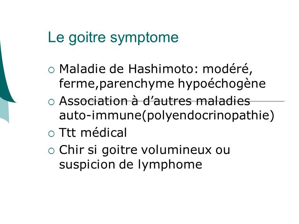 Le goitre symptome Maladie de Hashimoto: modéré, ferme,parenchyme hypoéchogène. Association à d'autres maladies auto-immune(polyendocrinopathie)