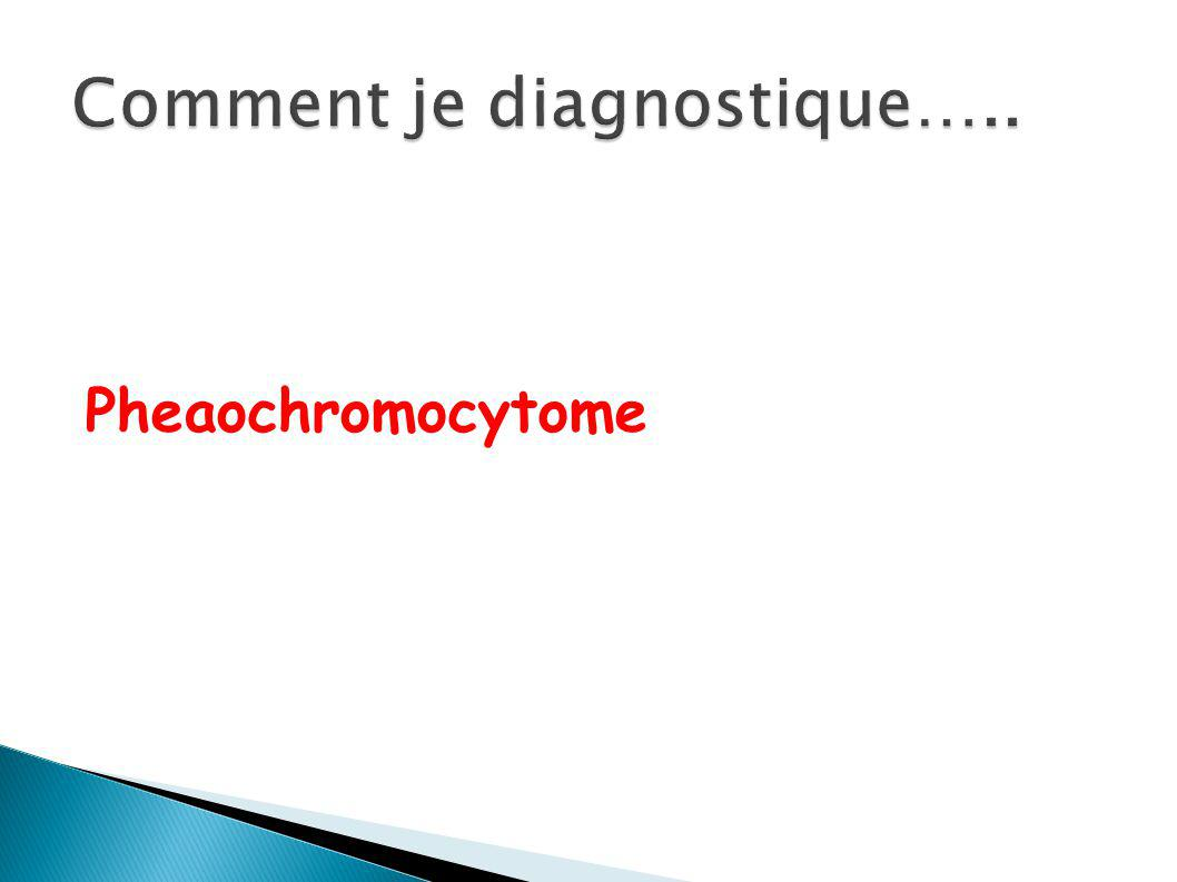Comment je diagnostique…..