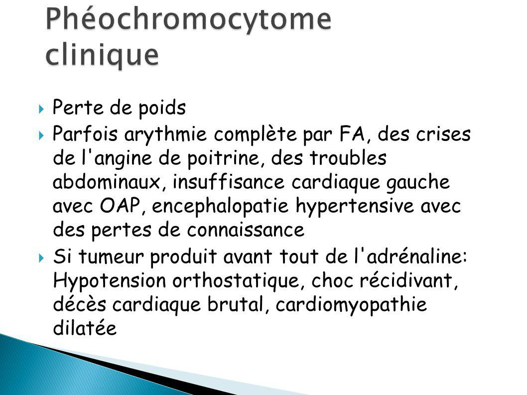 Phéochromocytome clinique