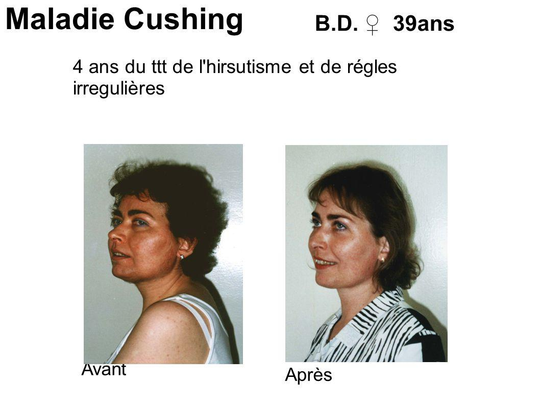 Maladie Cushing B.D. ♀ 39ans