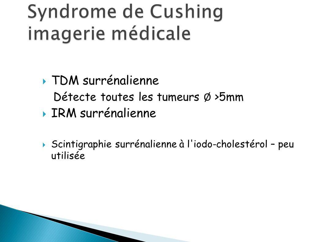 Syndrome de Cushing imagerie médicale