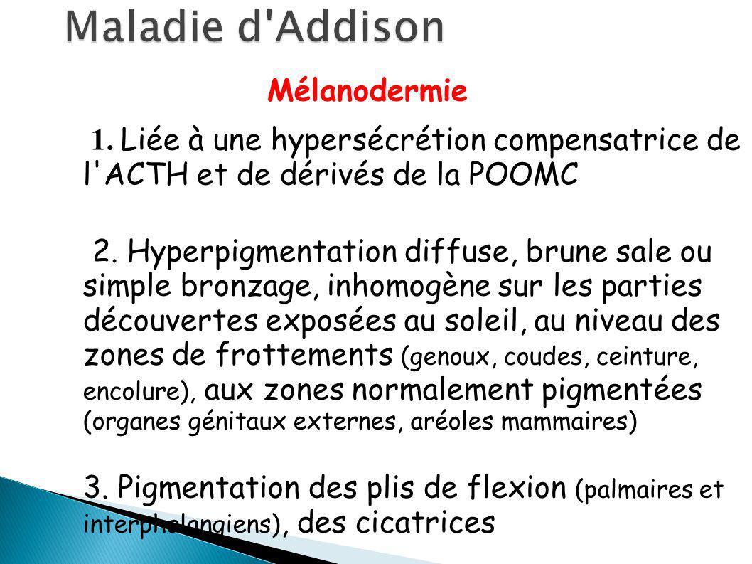 Maladie d Addison Mélanodermie