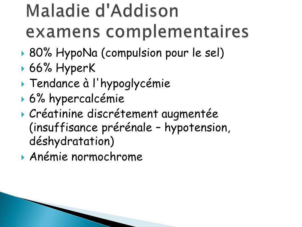 Maladie d Addison examens complementaires
