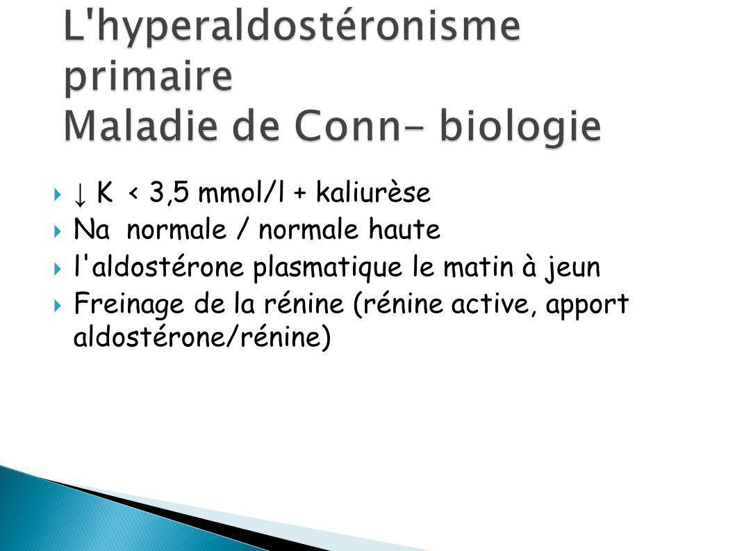 L hyperaldostéronisme primaire Maladie de Conn- biologie