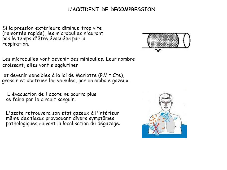 L'ACCIDENT DE DECOMPRESSION