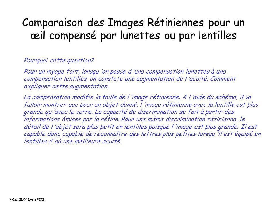 Comparaison des Images Rétiniennes pour un œil compensé par lunettes ou par lentilles