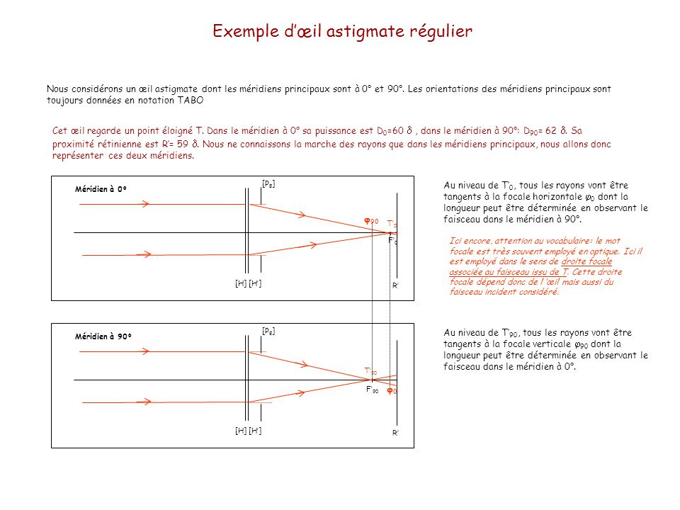 Exemple d'œil astigmate régulier