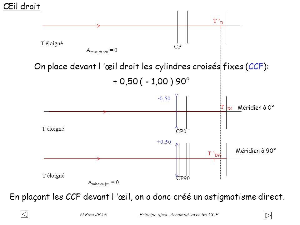 On place devant l 'œil droit les cylindres croisés fixes (CCF):