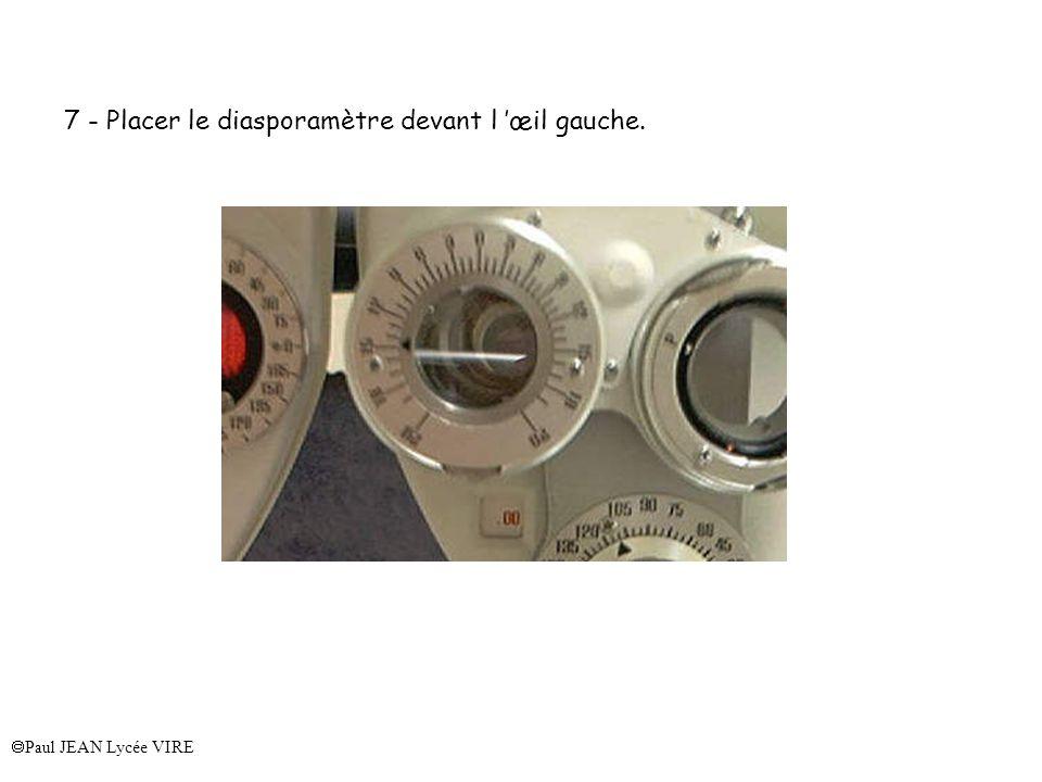 7 - Placer le diasporamètre devant l 'œil gauche.
