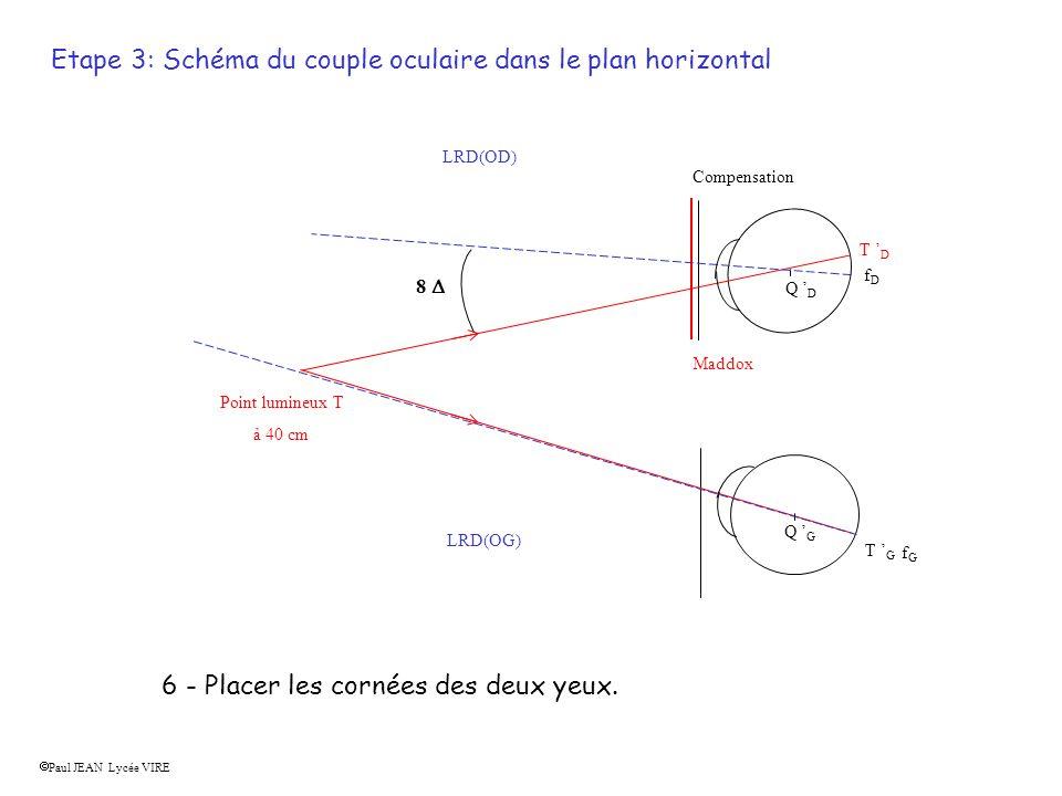 Etape 3: Schéma du couple oculaire dans le plan horizontal