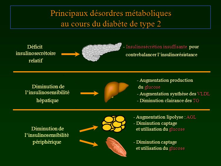 Principaux désordres métaboliques au cours du diabète de type 2