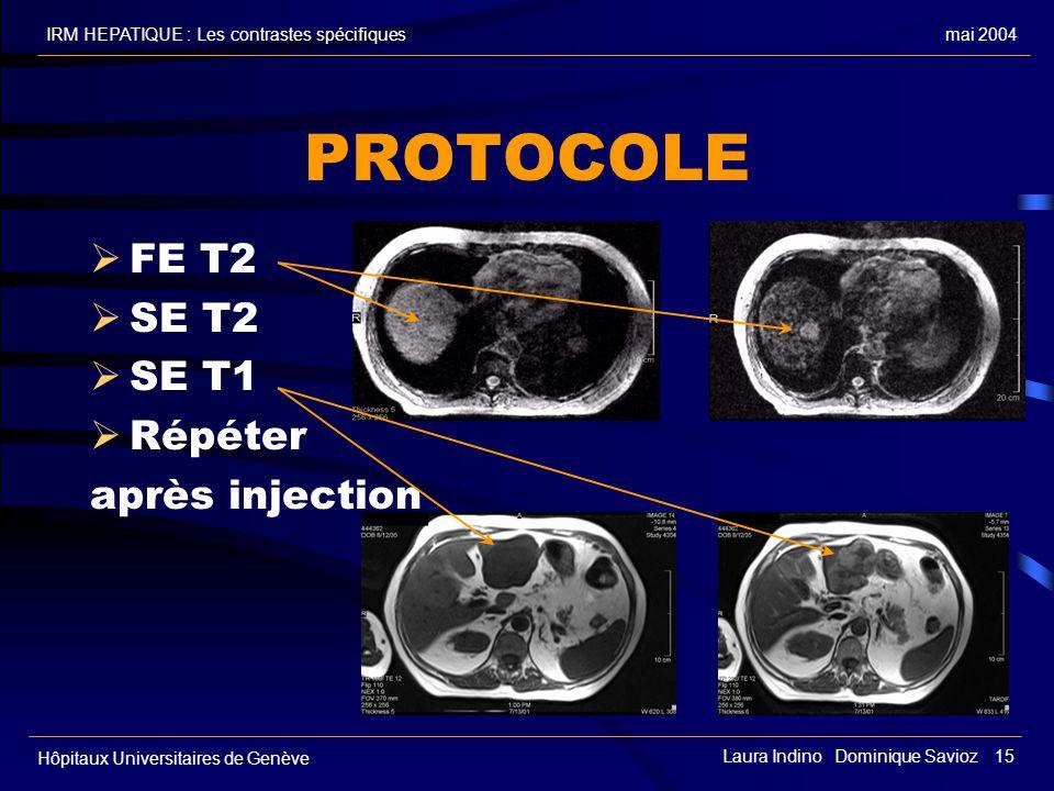 PROTOCOLE FE T2 SE T2 SE T1 Répéter après injection FE T2