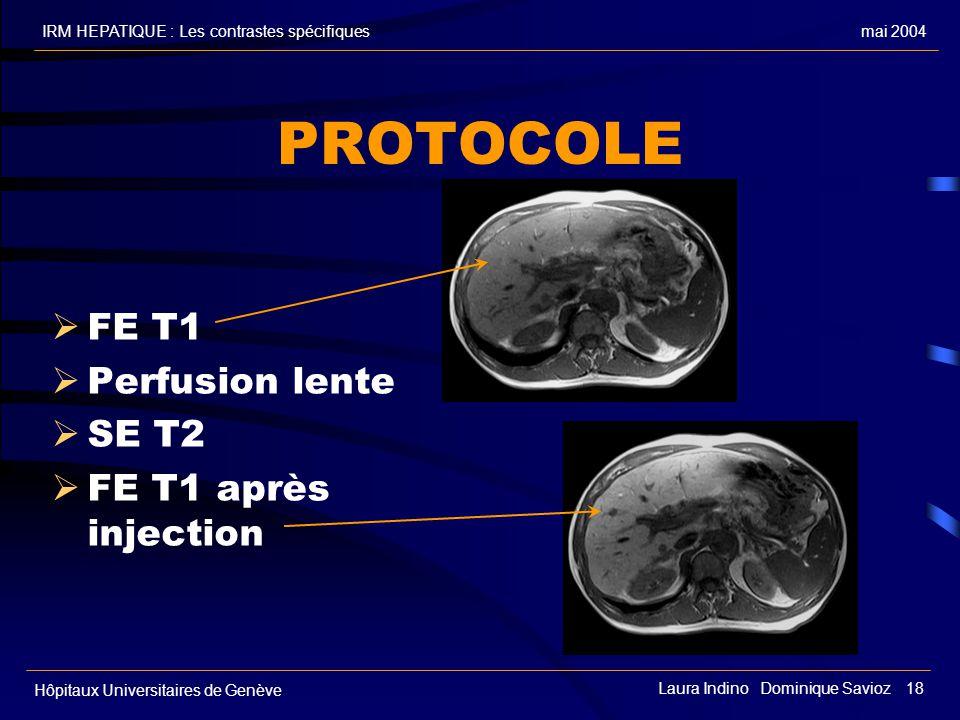 PROTOCOLE FE T1 Perfusion lente SE T2 FE T1 après injection FE T1