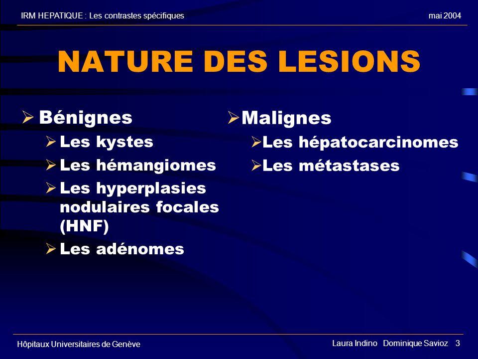 NATURE DES LESIONS Bénignes Malignes Les kystes Les hépatocarcinomes