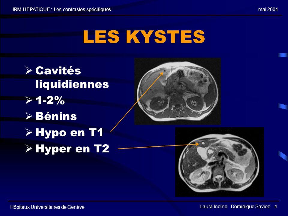 LES KYSTES Cavités liquidiennes 1-2% Bénins Hypo en T1 Hyper en T2