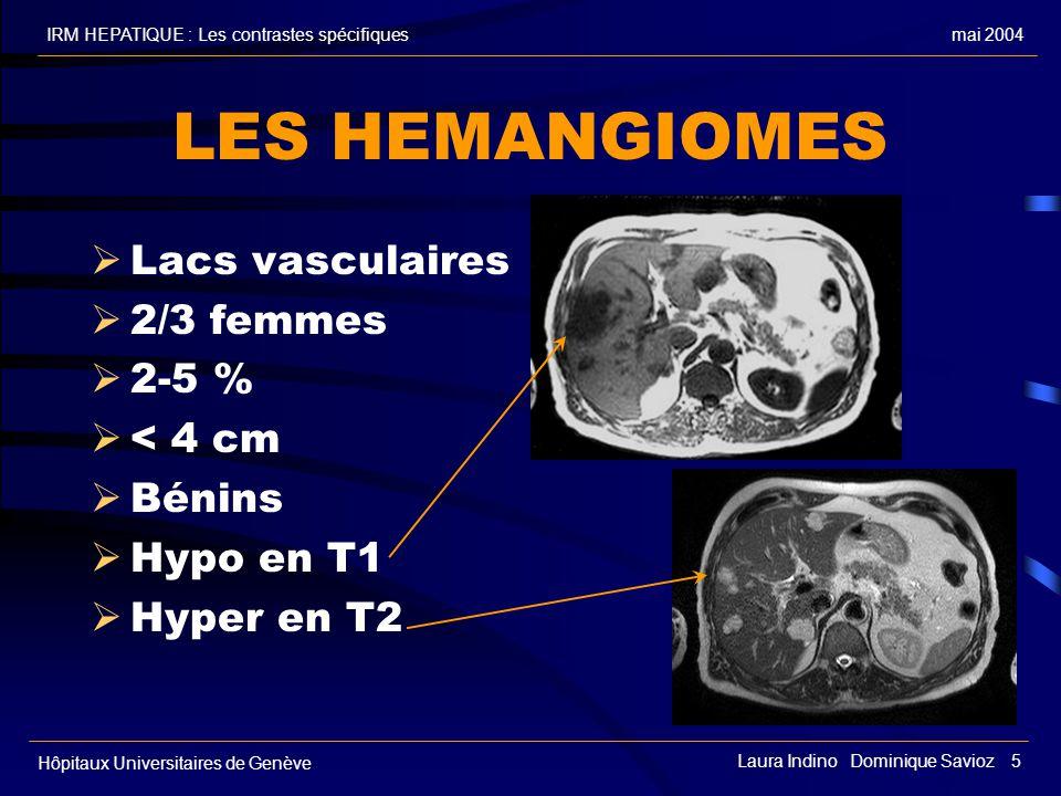 LES HEMANGIOMES Lacs vasculaires 2/3 femmes 2-5 % < 4 cm Bénins
