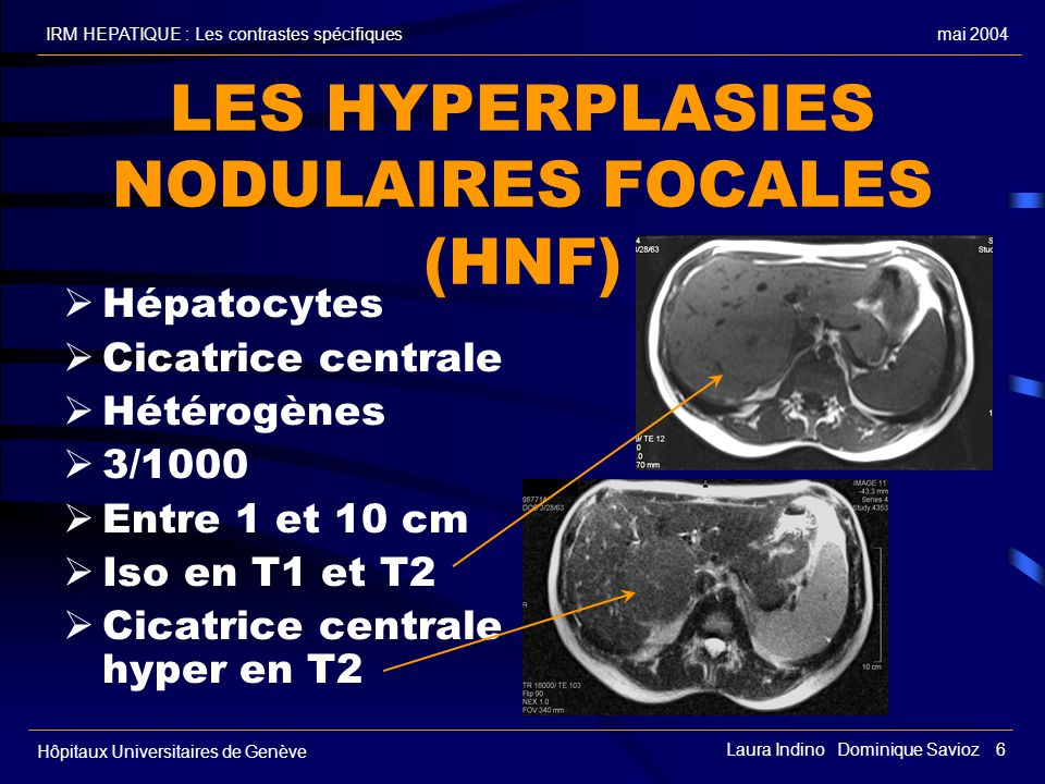 LES HYPERPLASIES NODULAIRES FOCALES (HNF)