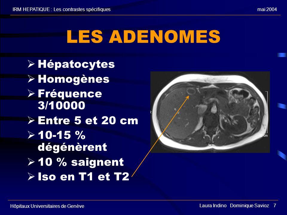 LES ADENOMES Hépatocytes Homogènes Fréquence 3/10000 Entre 5 et 20 cm