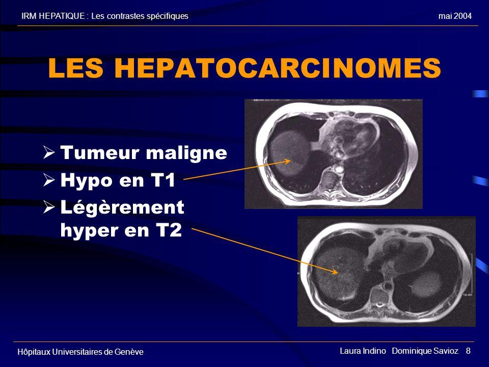 LES HEPATOCARCINOMES Tumeur maligne Hypo en T1 Légèrement hyper en T2