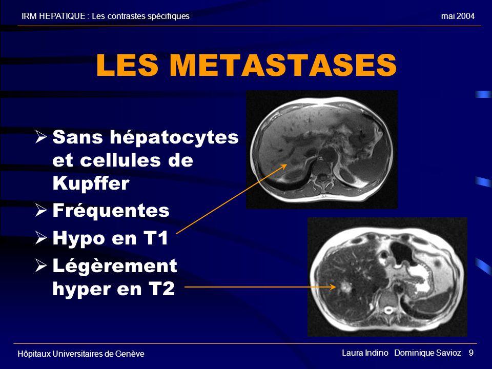 LES METASTASES Sans hépatocytes et cellules de Kupffer Fréquentes