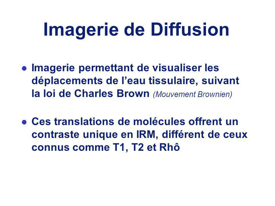 Imagerie de Diffusion Imagerie permettant de visualiser les déplacements de l'eau tissulaire, suivant la loi de Charles Brown (Mouvement Brownien)