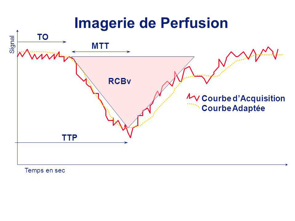 Imagerie de Perfusion TO MTT RCBv Courbe d'Acquisition Courbe Adaptée