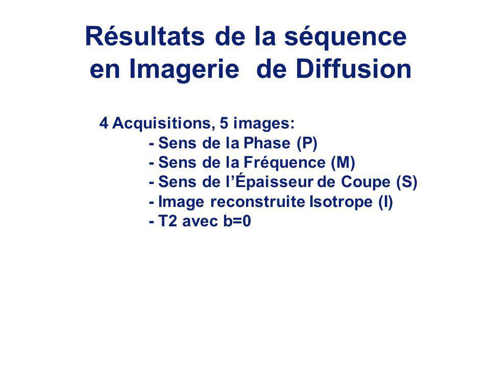Résultats de la séquence en Imagerie de Diffusion