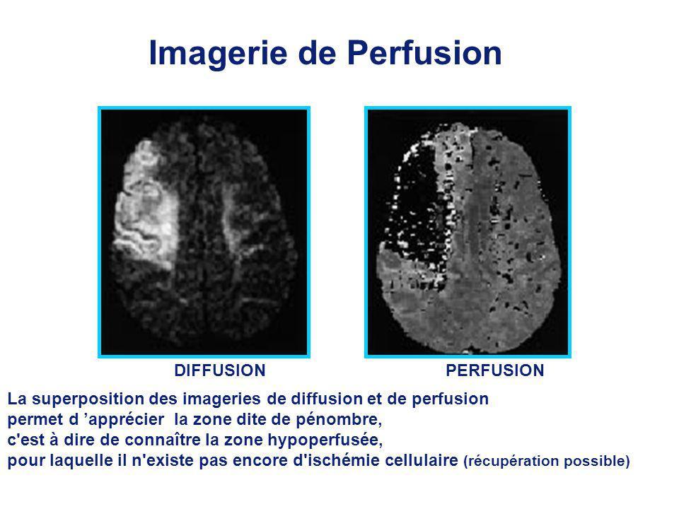 Imagerie de Perfusion DIFFUSION PERFUSION. La superposition des imageries de diffusion et de perfusion.