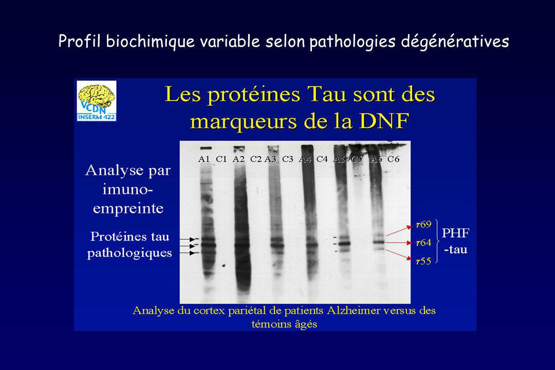 Profil biochimique variable selon pathologies dégénératives