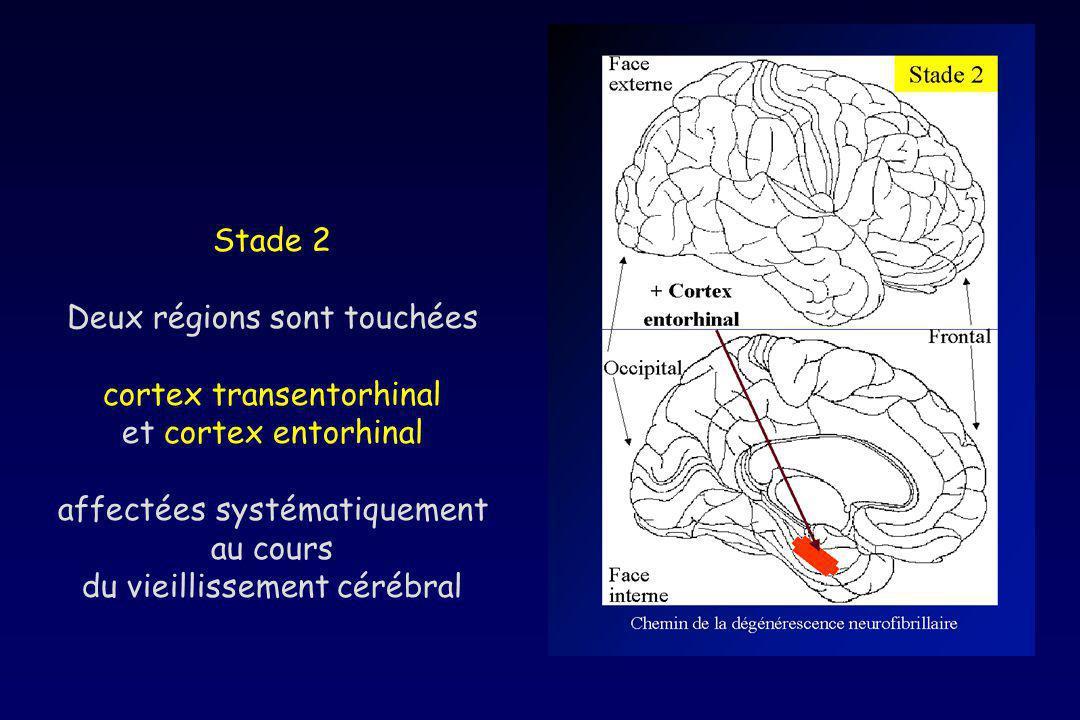 Deux régions sont touchées cortex transentorhinal et cortex entorhinal